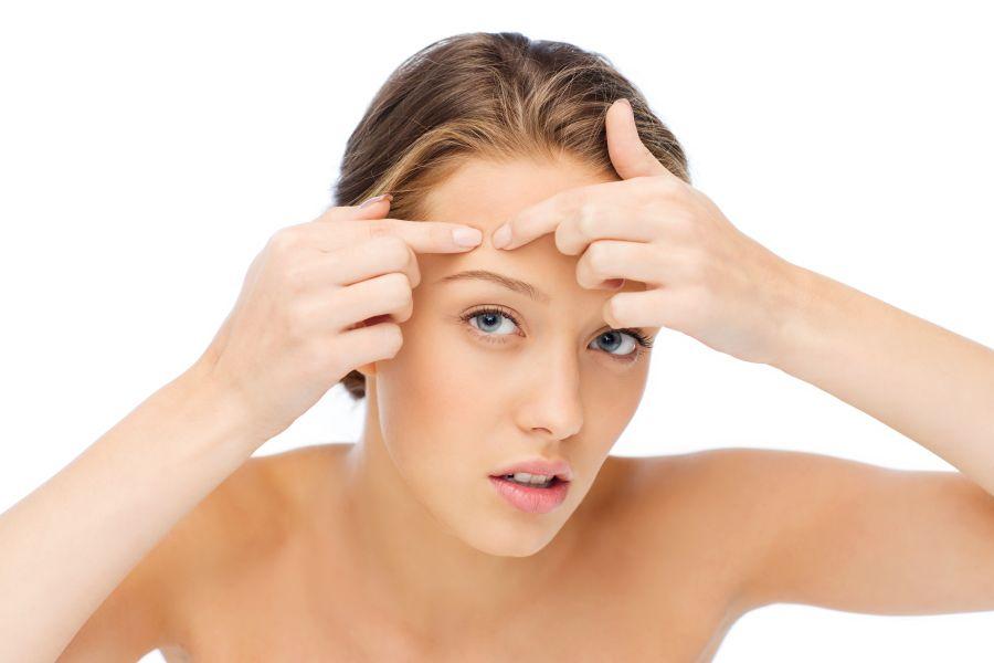 Ako vyhrať boj s akné?