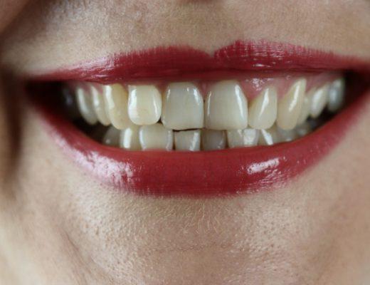Zubné implantáty: Čo obnášajú a ako sa o ne starať?